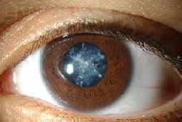 Nguyên nhân đục thủy tinh thể chủ yếu liên quan đến lão hóa mắt